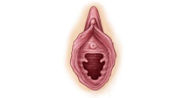 انواع پرده بکارت در زنان شکل دندانه دار (شرابه ای ) - قلقلی خان