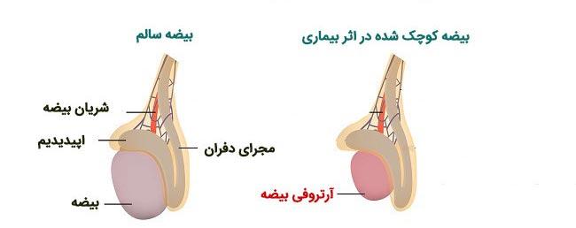 بیضه های کوچک و سفت از نشانه های ناباروری مردان - قلقلی خان