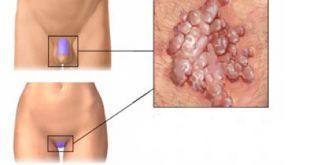 درمان سریع تبخال تناسلی مردان و زنان، قرص تبخال تناسلی - قلقلی خان