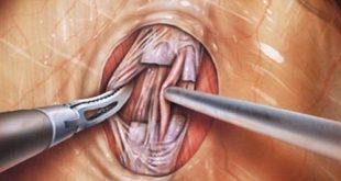 درمان واریکوسل در مردان ، عمل جراحی واریکوسلکتومی - قلقلی خان