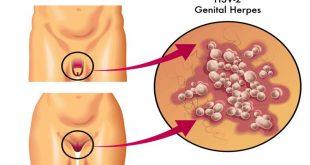 شکل ظاهری تبخال تناسلی در مردان و زنان - قلقلی خان